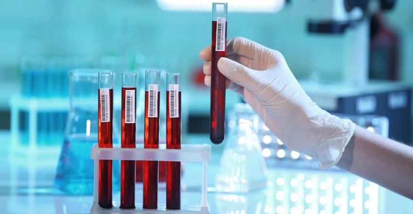 анализ крови на гашиш