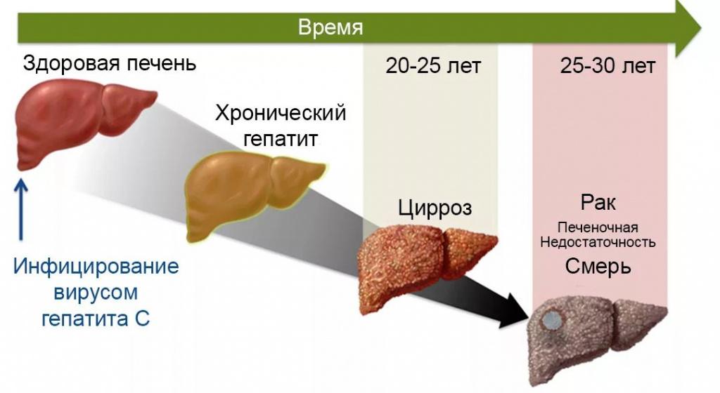 Употребление наркотиков при лечение гепатита